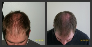 Male Client 9 - 21 Months of Laser Hair Therapy Treatments